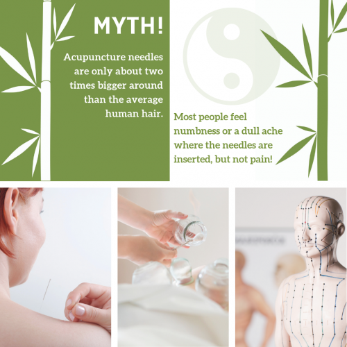 Common myths about acupuncture answered