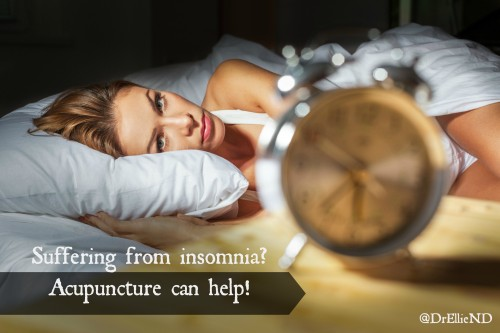 Acupuncture for sleep
