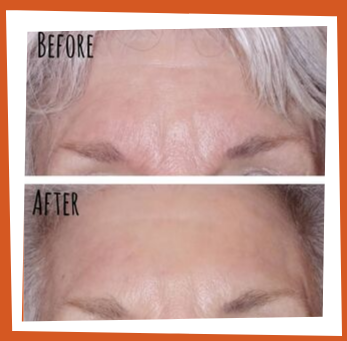 Facial rejuvenation in Bothell