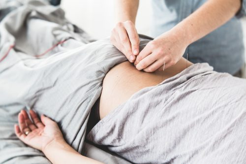 Acupuncture can treat low back pain