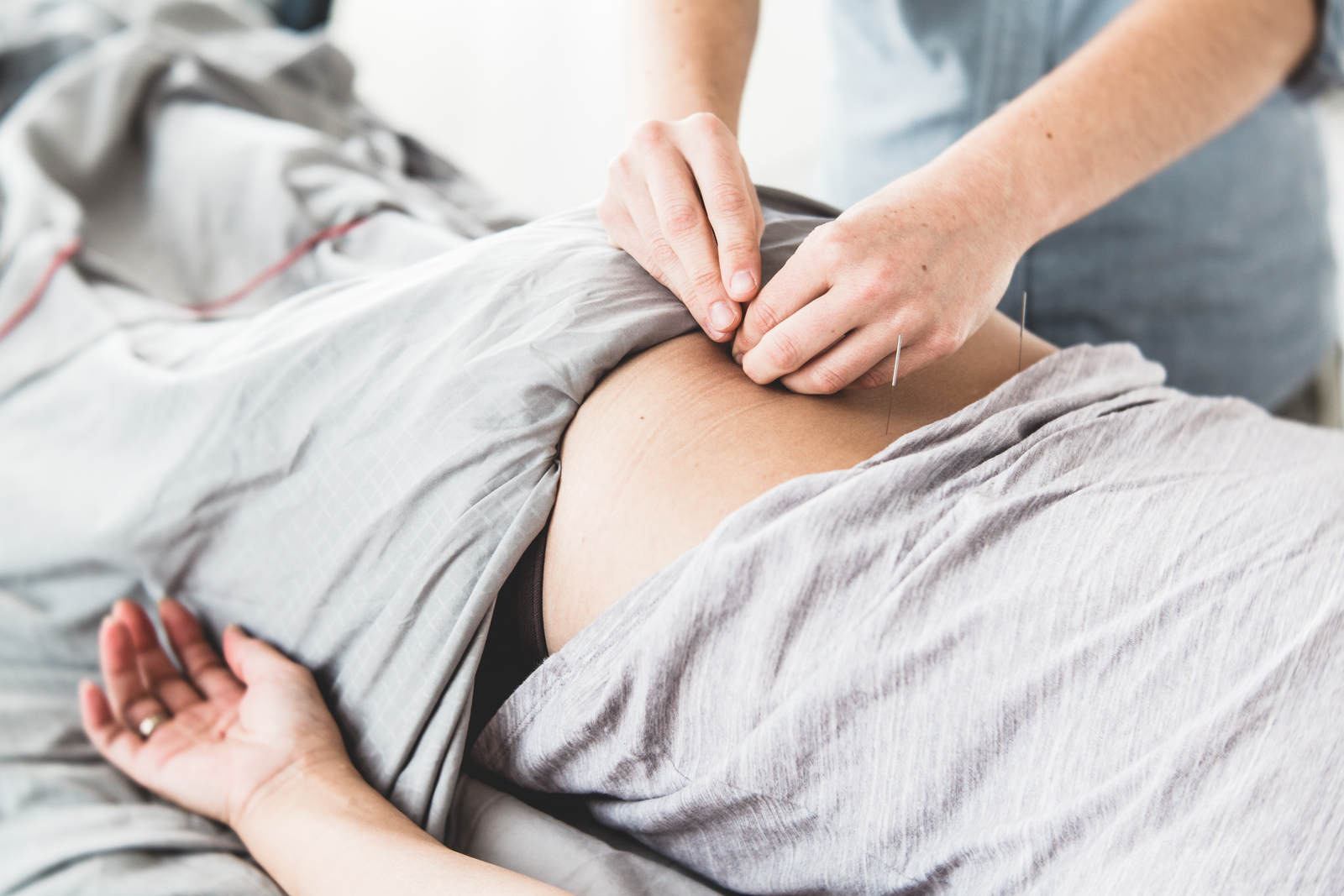 Low back pain and acupuncture