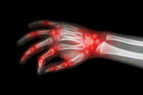 Image for Ehler-Danlos Syndrome
