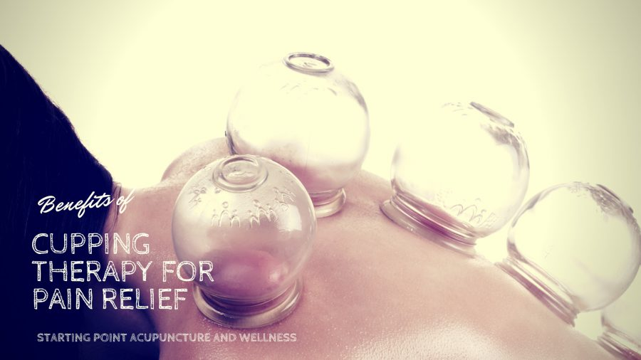 cupping for pain relief
