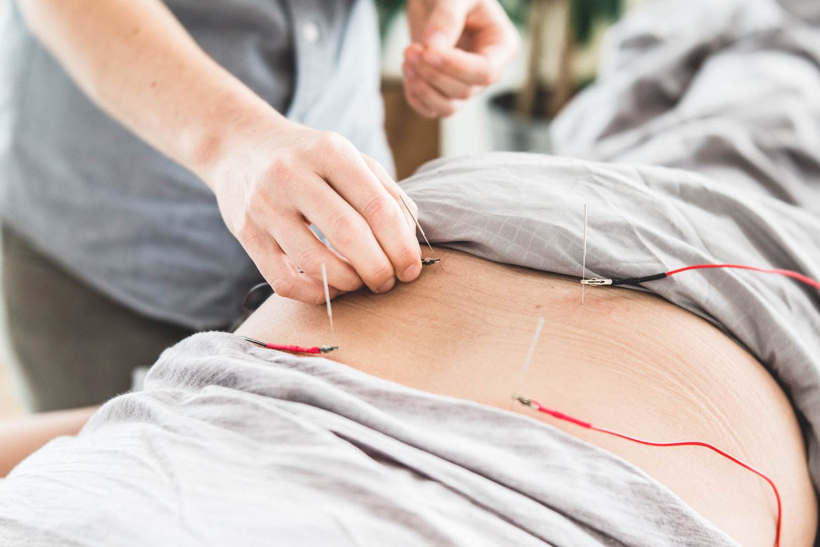 Electroacupuncture for pain relief